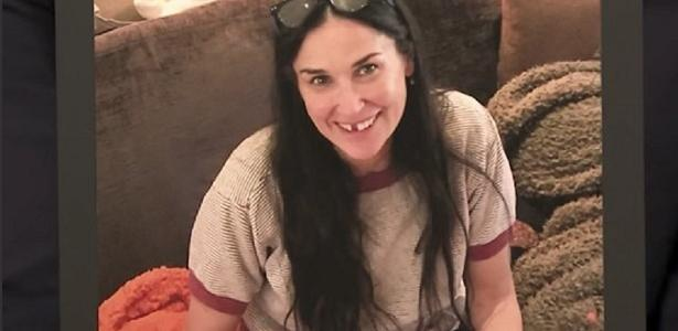Foto da atriz Demi Moore, sem um dos dentes