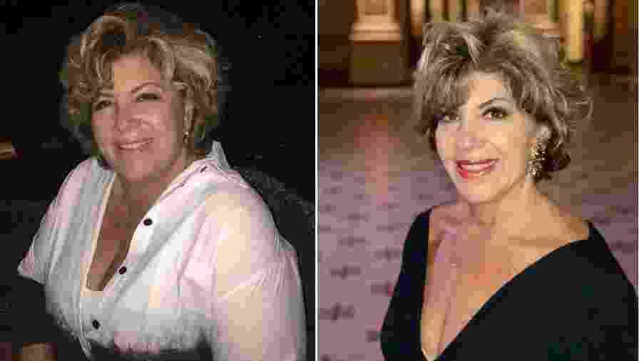Silvia Poppovic antes e depois de fazer a cirurgia de redução do estômago - Reprodução/Instagram