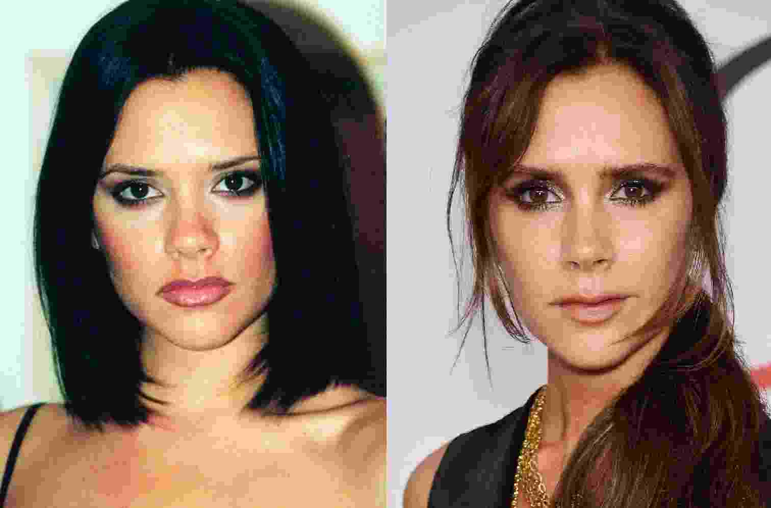 Antes e depois - Getty Images