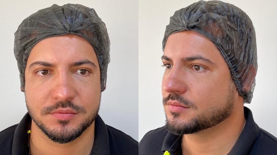 Thiago Bertoldo preencheu o contorno dos olhos com ácido hialurônico - Divulgação