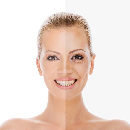 Nem pense em se expor ao sol ao usar produtos para clarear a pele - iStock