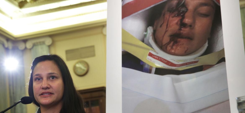 Não há dados sobre feridos no Brasil; nos EUA, são centenas de casos (como o de Stephanie Erdman), além de 22 mortes - Alex Wong/Getty Images