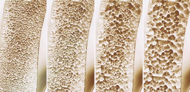 Probióticos podem colaborar para saúde dos ossos, mostra estudo