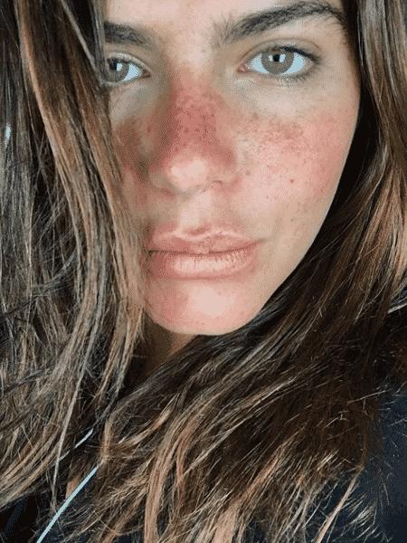 Mariana Goldfarb mostra as sardas - Reprodução/Instagtam