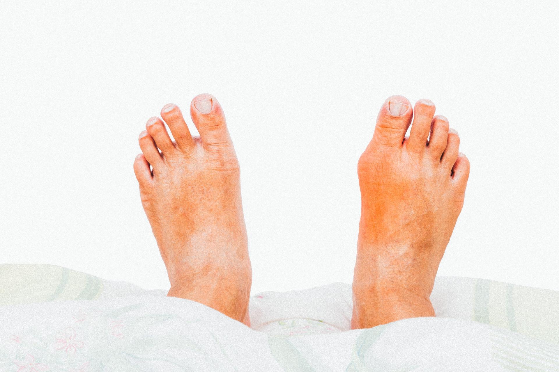 pés inchados depois de beber cerveja