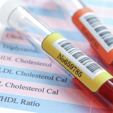 Os cientistas mostraram que a proteína se acumula no sangue muito antes do início dos sintomas - iStock