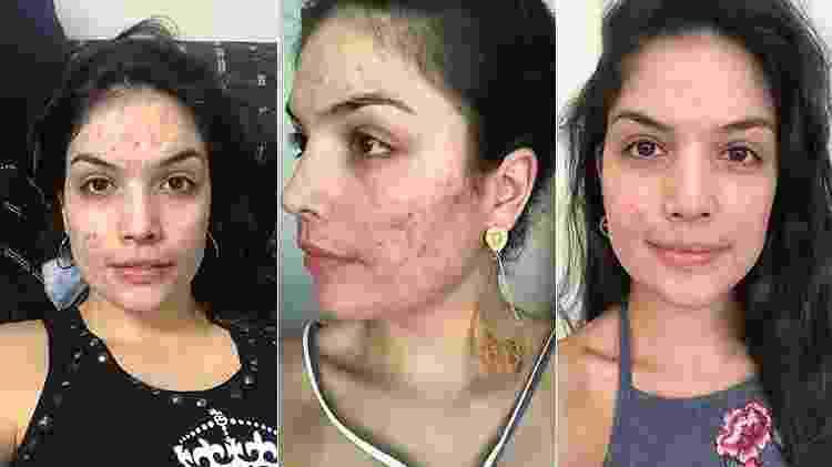 Suellen Neves aos 4 meses, 6 meses e 7 meses de uso da medicação - Arquivo pessoal - Arquivo pessoal