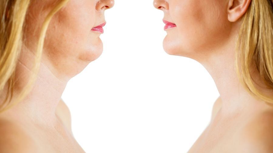 Tratamentos feitos em consultório permitem deixar o desenho do contorno da mandíbula mais marcado - Getty Images/iStockphoto