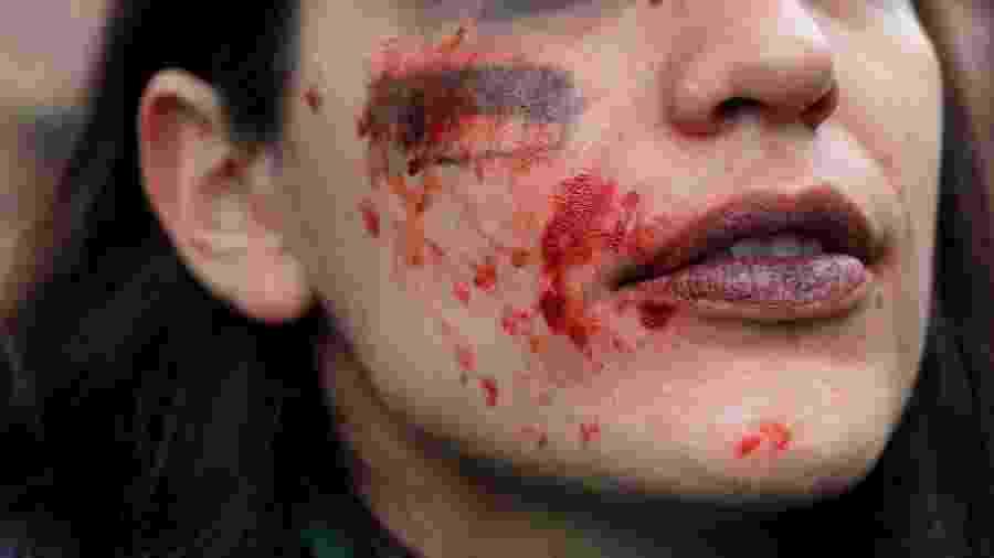8.mar.2020 - Manifestante usa maquiagem simulando agressão física para protestar contra a violência de gênero, em Madri - Susana Vera/Reuters