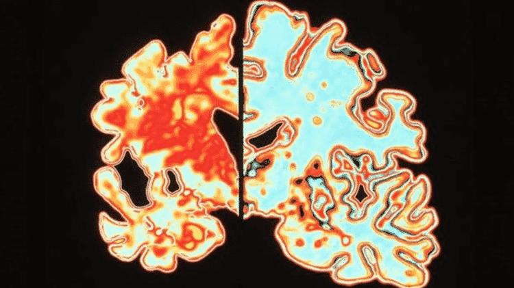 O cérebro de alguém com Alzheimer (à esquerda) comparado ao de alguém sem a doença (à direita) - Science Photo Library