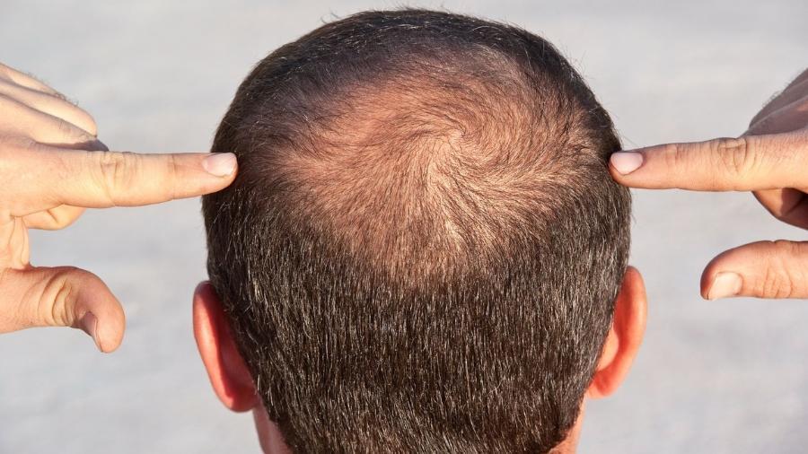 A calvície geralmente é causada por situações que exigem muito do organismo  - iStock