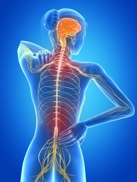 Esclerose múltipla  - iStock
