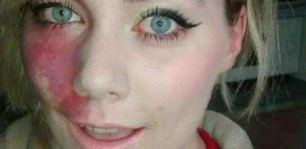 Alexandra Harford exibe a mancha no rosto em fotos na web - Arquivo pessoal