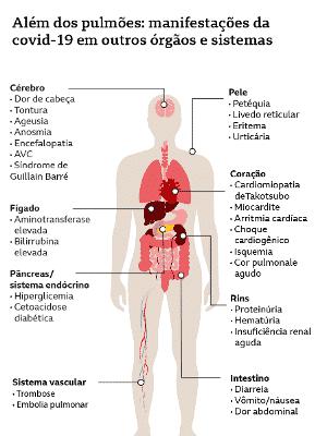 Coronavirus Veja Quais Sao Os Sintomas E Sequelas Mais Comuns Da Covid 19 Segundo 60 Mil Pacientes