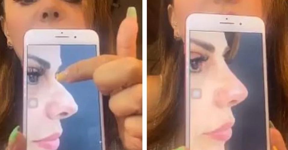 Viviane Araújo mostra mudança no nariz após rinoplastia