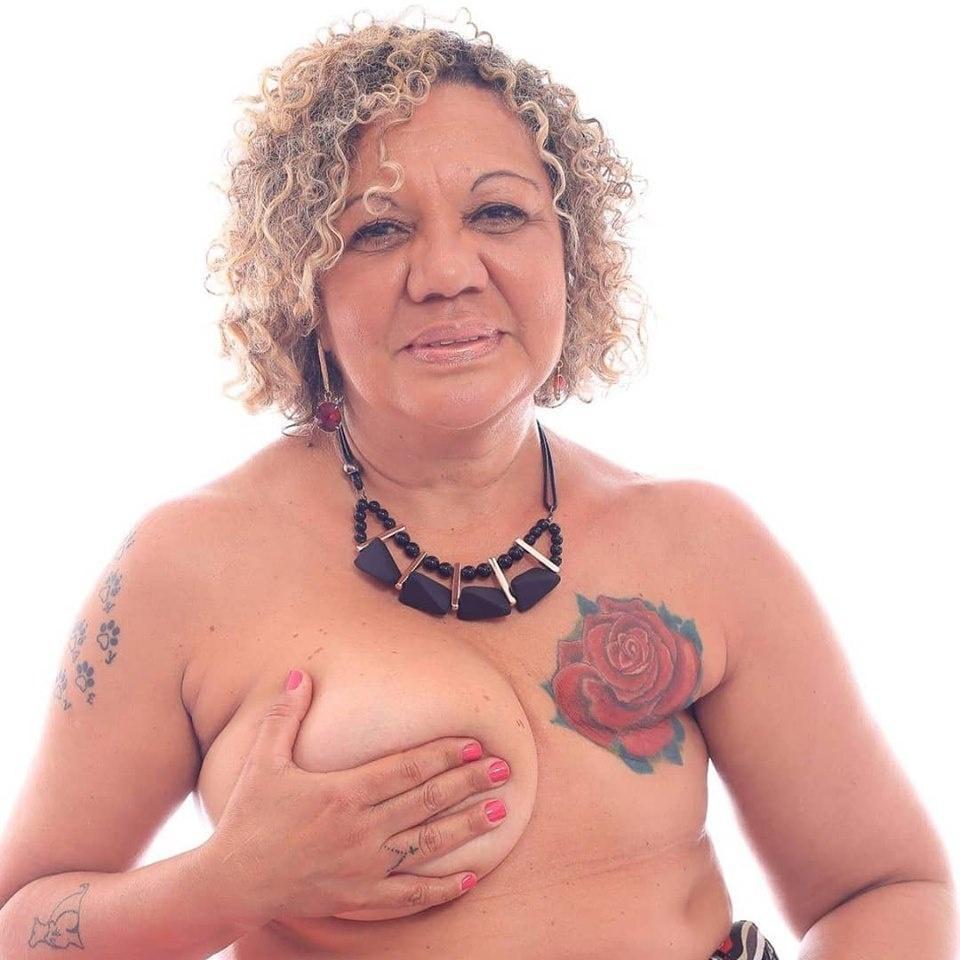 """""""Não quis fazer reconstrução de mama. Mesmo sem um peito, ainda sou mulher"""""""