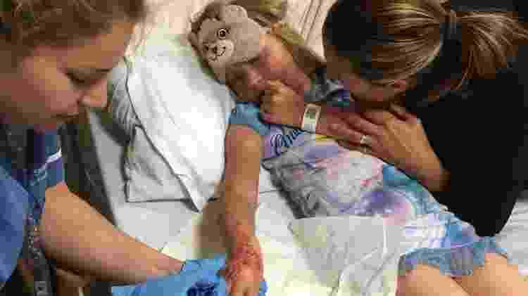Madison Gulliver parou no hospital e deverá ter cicatrizes permanentes - Reprodução/SWNS.com - Reprodução/SWNS.com