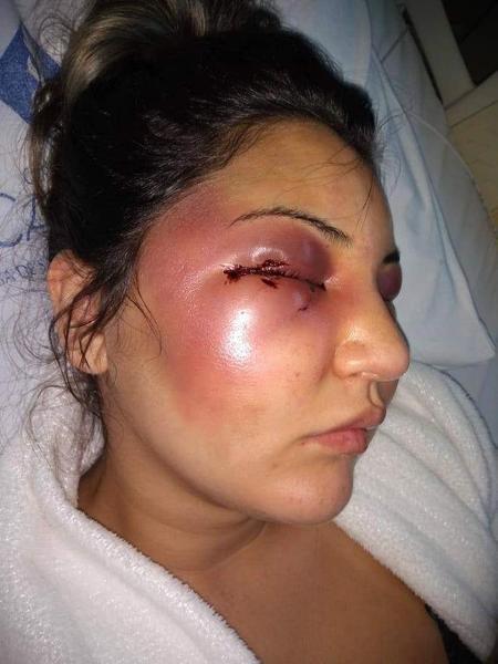 Imagem que mostra ex-mulher desfigurada foi publicada pela família da vítima - Reprodução/Facebook