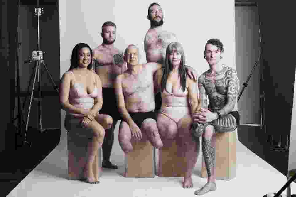 Modelos amputados fazem ensaio para celebrar a diversidade e a autoestima - Divulgação