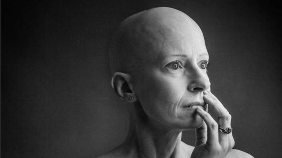 """Liz O""""Riordan foi diagnosticada com câncer de mama pela primeira vez em 2015 - Alex Kilbee"""