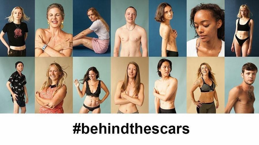 Inglesa cria projeto de encorajamento e aceitação para pessoas que têm cicatrizes - Reprodução/Instagram/behindthescars