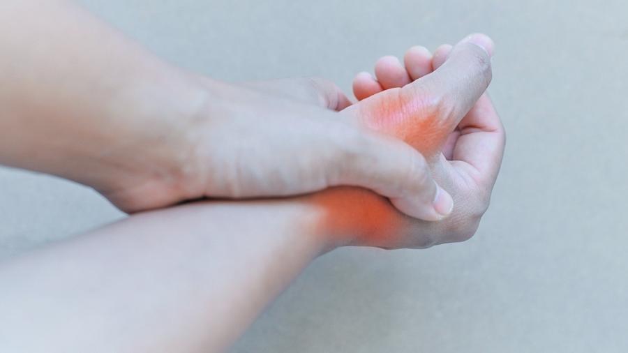 Inflamações nas articulações típicas da doença têm origem no excesso de produção ou na dificuldade de excreção do ácido úrico  - iStock