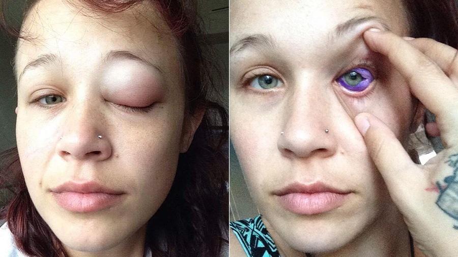 Catt Gallinger teve uma grave infecção após tentar tatuar o branco dos olhos - Reprodução/Facebook
