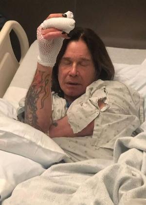 Ozzy Osbourne mostra foto em hospital de Los Angeles após fazer cirurgia na mão
