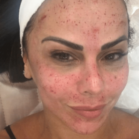 Viviane Araujo mostra tratamento para a pele - Reprodução/Instagram