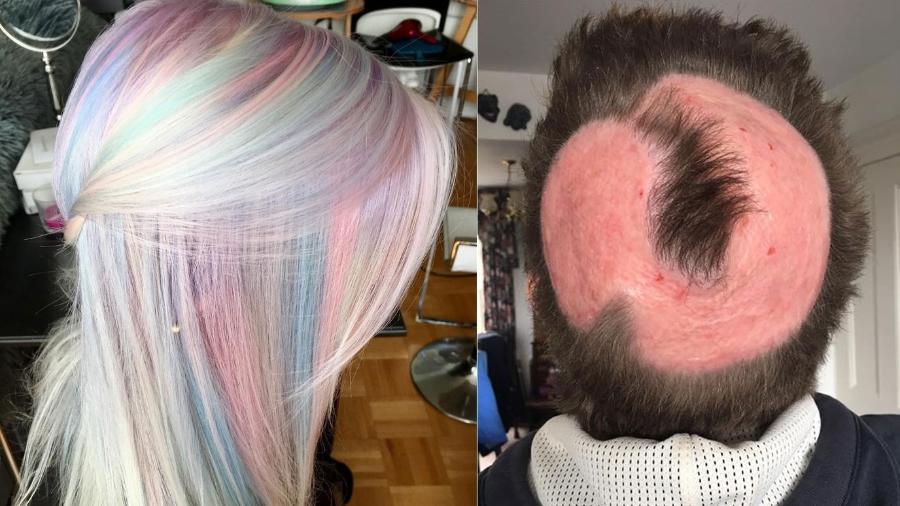 Expectativa x realidade: uma mulher britânica perdeu seus fios ao tentar tingi-los. A foto da direita mostra como ela ficou - Reprodução/Instagram e Facebook