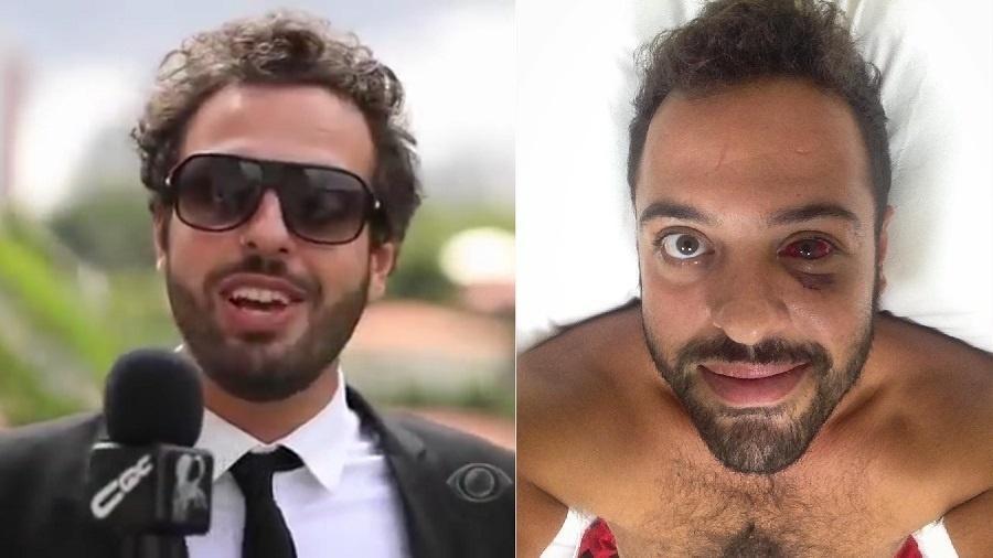 """Tomer Savoia como repórter do """"CQC"""" e antes de operar o olho ferido durante assalto - Montagem/Reprodução/Band/Instagram"""