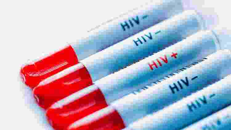 HIV, exame, teste - Getty Images - Getty Images