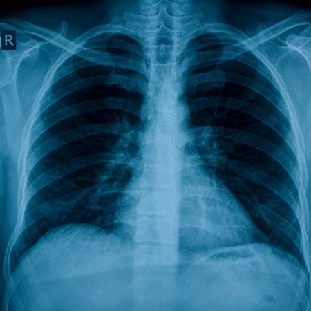 Ação no sistema imunológico favorece dano aos pulmões, avaliam pesquisadores - iStock
