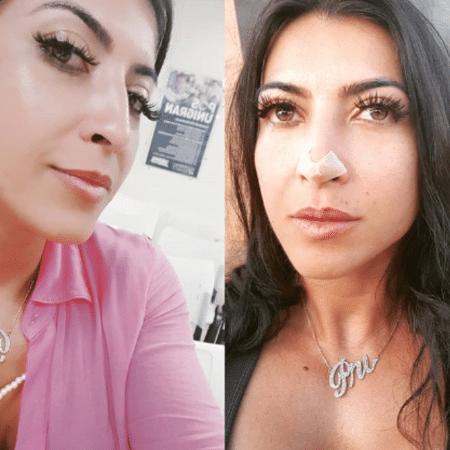 Ex-BBB Priscila Pires mostra antes e depois de passar por procedimentos estéticos - Reprodução/Instagram
