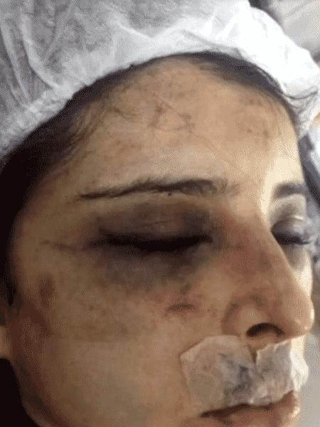 Lutador é acusado de agredir namorada no RJ - Reprodução/TV Globo