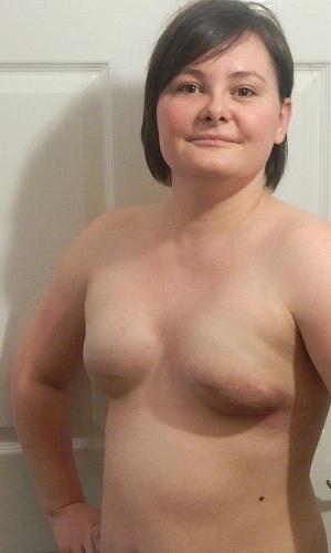 Catherine passou por uma mastectomia dupla em março deste ano
