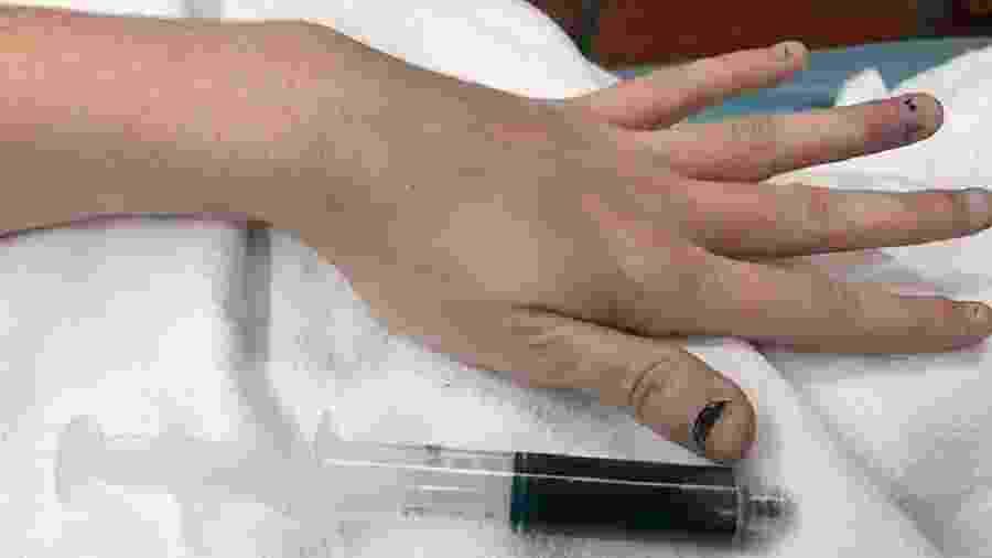 Médicos disseram que condição é raríssima -  Reprodução/New England Journal of Medicine