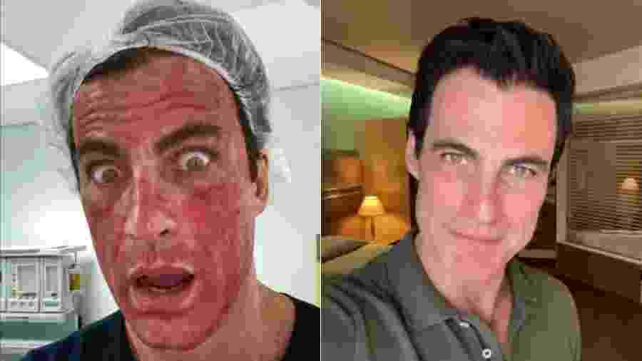 Carlos Casagrande logo após fazer procedimento estético e dois dias depois, com o rosto sem a vermelhidão  - Reprodução/Instagram