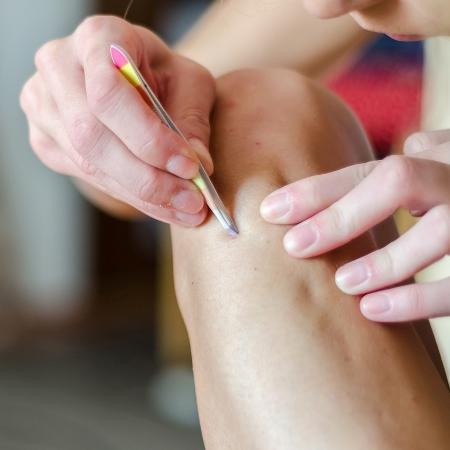 Pelos encravados podem gerar um processo inflamatório que causa pus e dor  - Istock