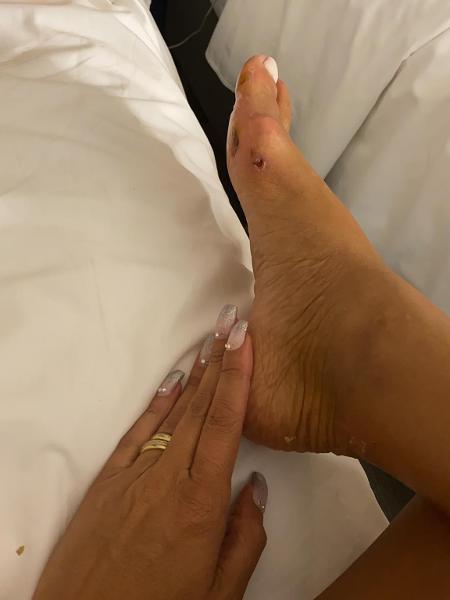 Camila Prins ainda desfila por outras duas escolas e garante que os ferimentos não vão atrapalhá-la - Arquivo pessoal
