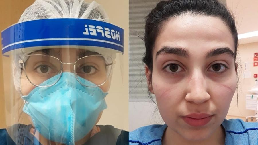 Camila Loredana, residente em infectologia no HC, com e sem a paramentação para lidar com pacientes gravíssimos de Covid-19 - Arquivo Pessoal