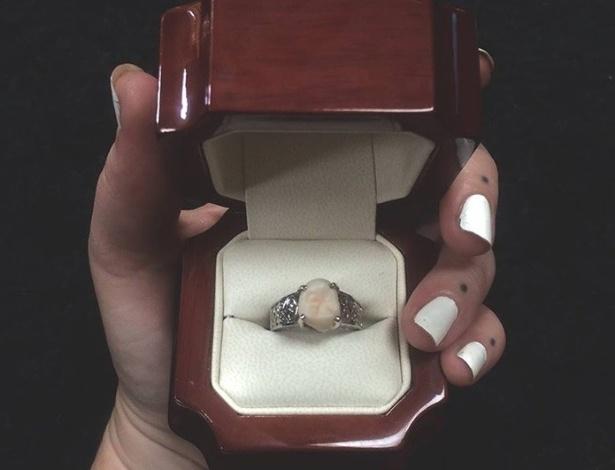 Aliança tem o dente do siso do noivo no lugar de pedra preciosa - Reprodução/Facebook/Carlee Leifkes