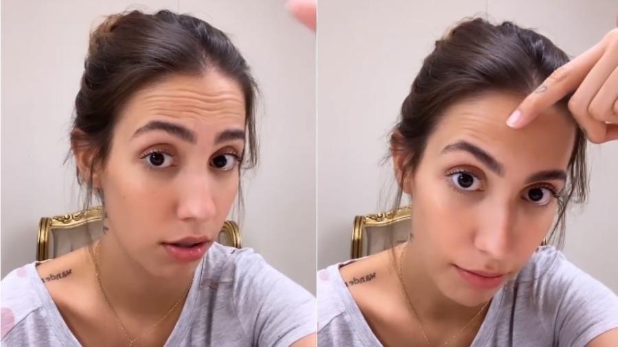 Gabi Brandt fala sobre aplicação de botox no rosto - Reprodução/Instagram