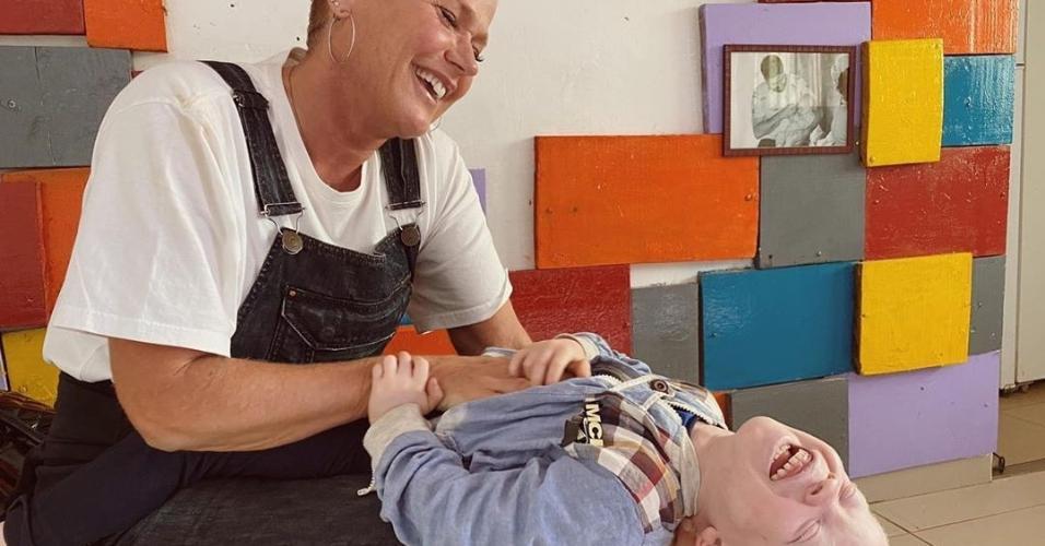 Xuxa brinca com criança albina em Angola