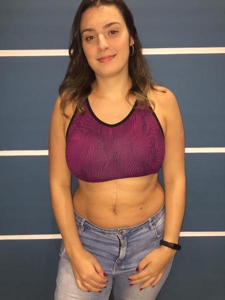 Carolina Rinaldi, 27, ficou com oito cicatrizes na barriga após quase morrer de infecção aos 12 anos - Arquivo Pessoal