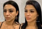 Jenny Miranda mostra o resultado de sua harmonização facial - Divulgação