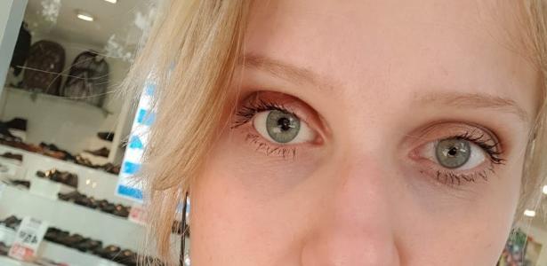 7b9ce3219 Ela teve doença causada por lente:
