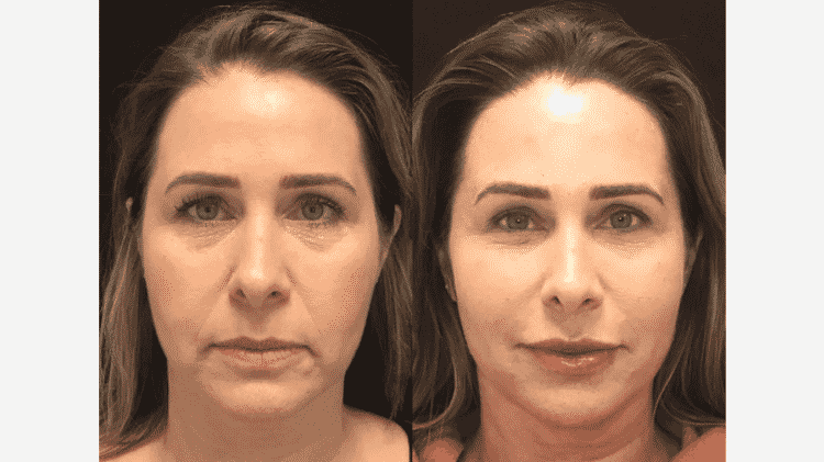 Andréa Sorvetão antes e depois da harmonização facial - Reprodução/Instagram