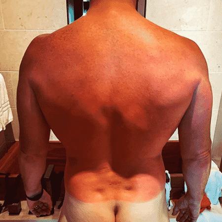 Chris Pratt mostra o bumbum branco durante lua de mel - Reprodução/Instagram