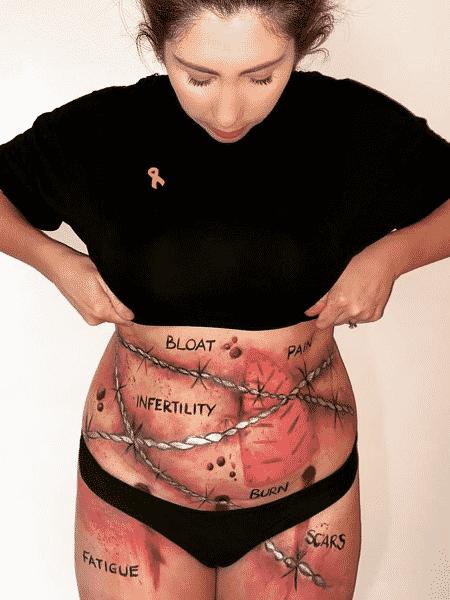 Ruth Anne mostra a realidade de quem vive com endometriose - Reprodução/Instagram